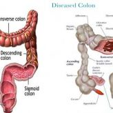 Colon Cleanse: The Healthy Way to Detox